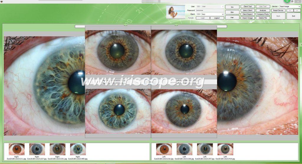 iriscope camera supplier