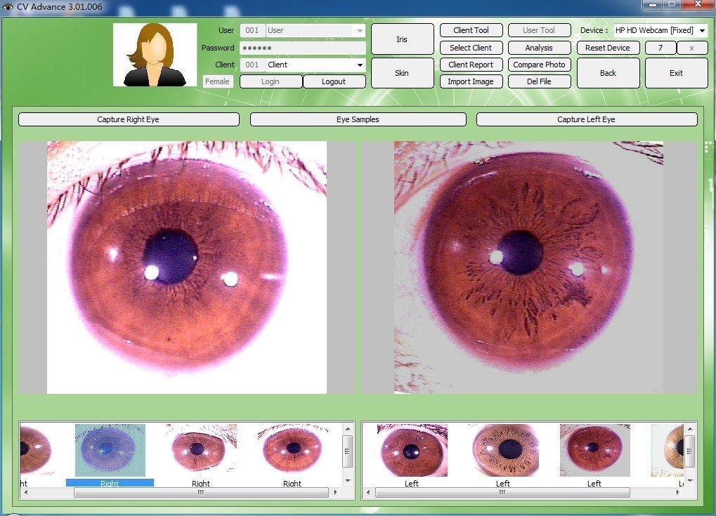 iriscope iris analyzer how to use and get the price