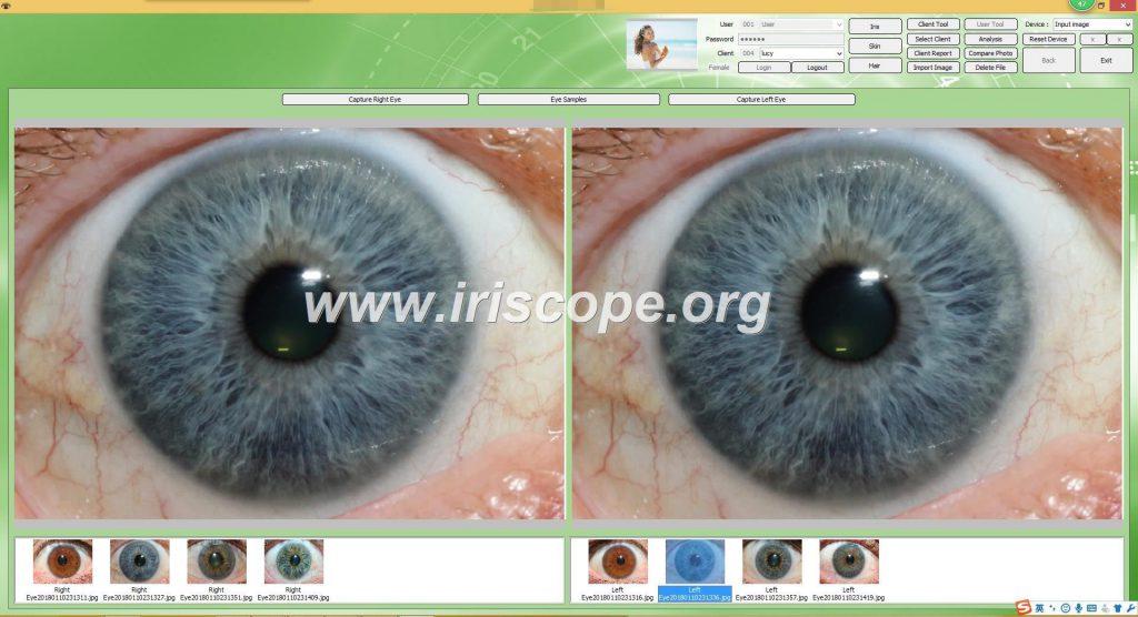 iriscopio 12 megapixeles