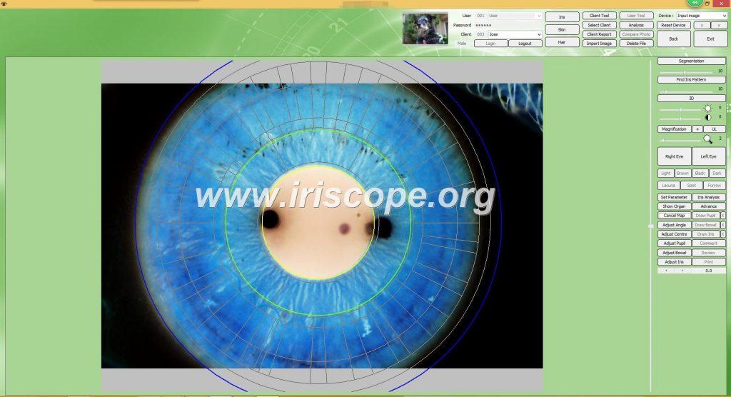iriscopio en uruguay