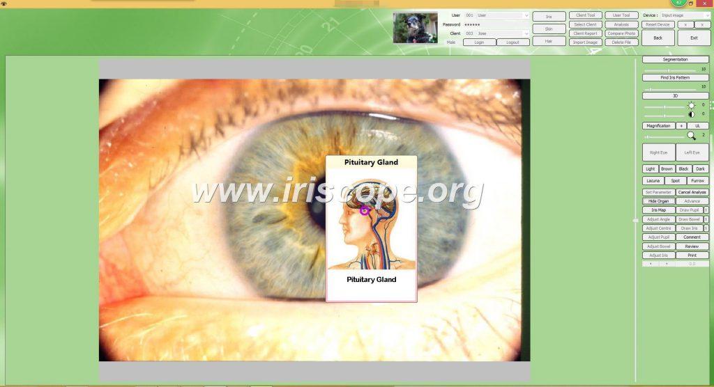 software para iriscopio