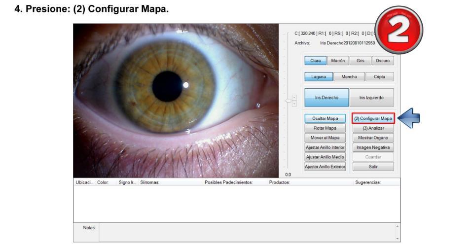 iriscopio de 5 megapixeles