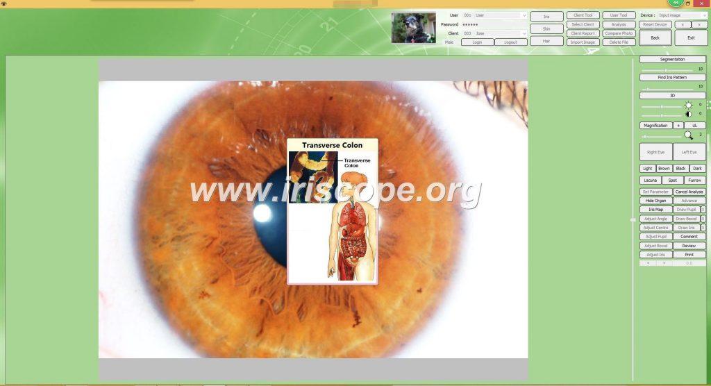 iriscopio españa