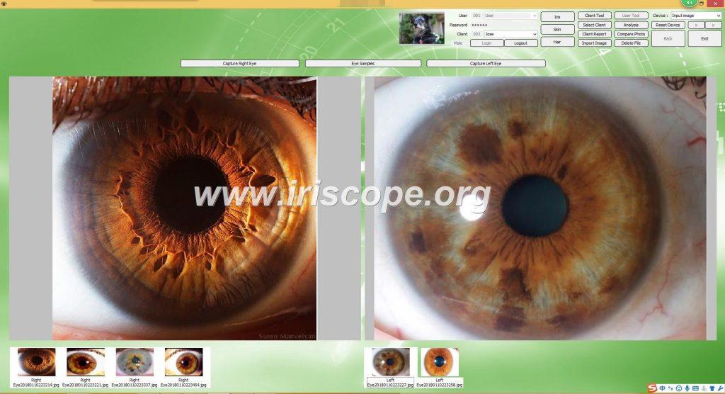 iriscopio profesional