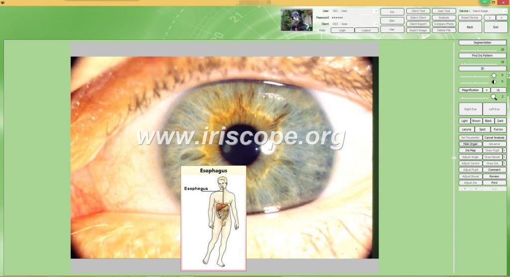 iriscopio bogota
