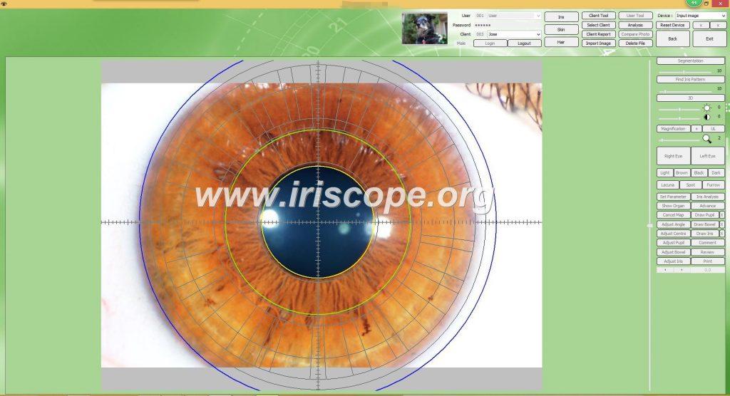 iriscopio portatil