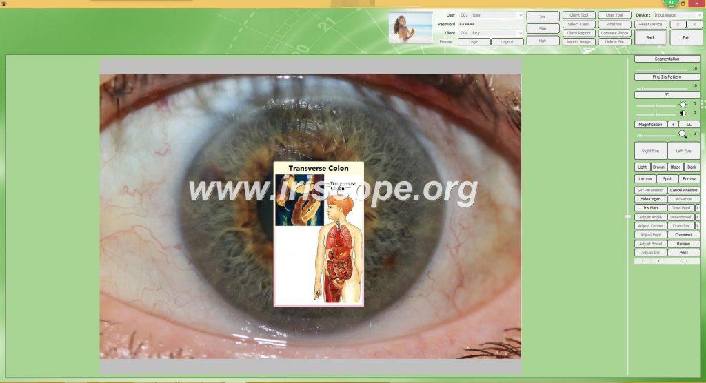 iriscopio gratis