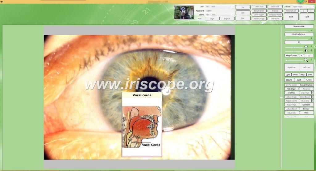 iriscopio precio