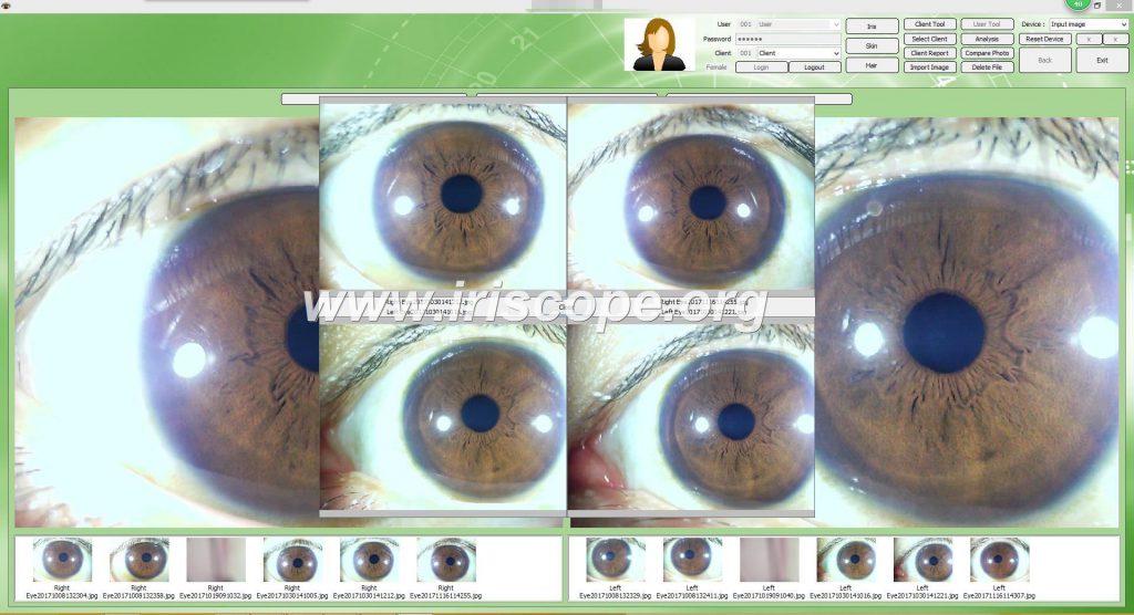 Software Para Iriscopio3