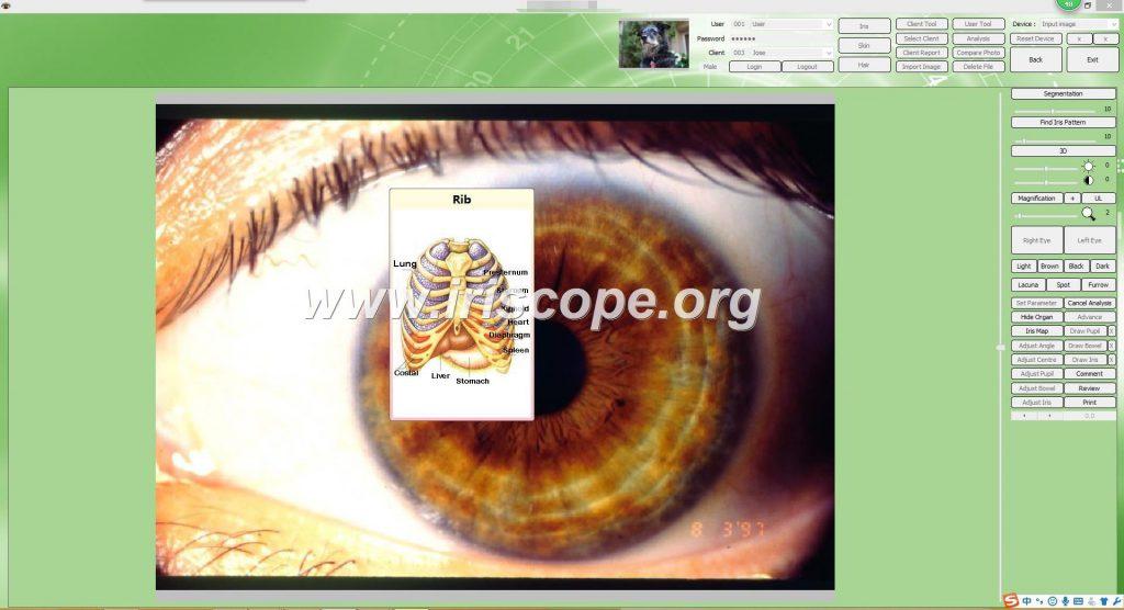iriscope a vendre