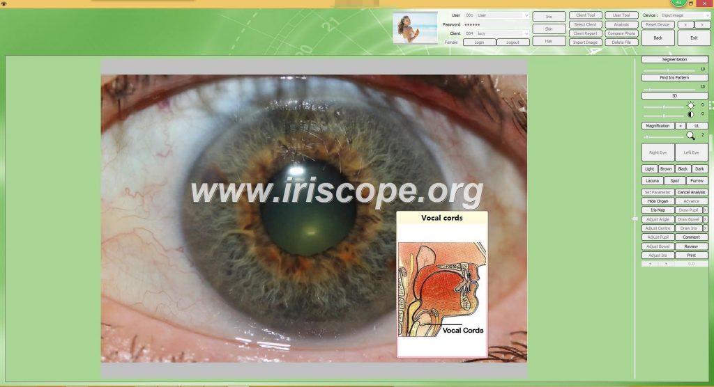Price Of Iriscope